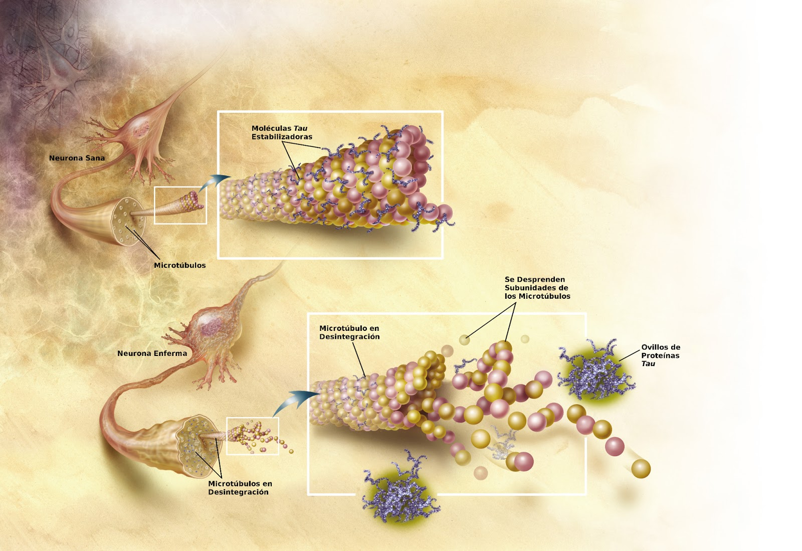 Упрощенная схема того, как микроканальцы разрушаются при болезни Альцгеймера (фото любезно предоставлено Национальным институтом США по проблемам старения).