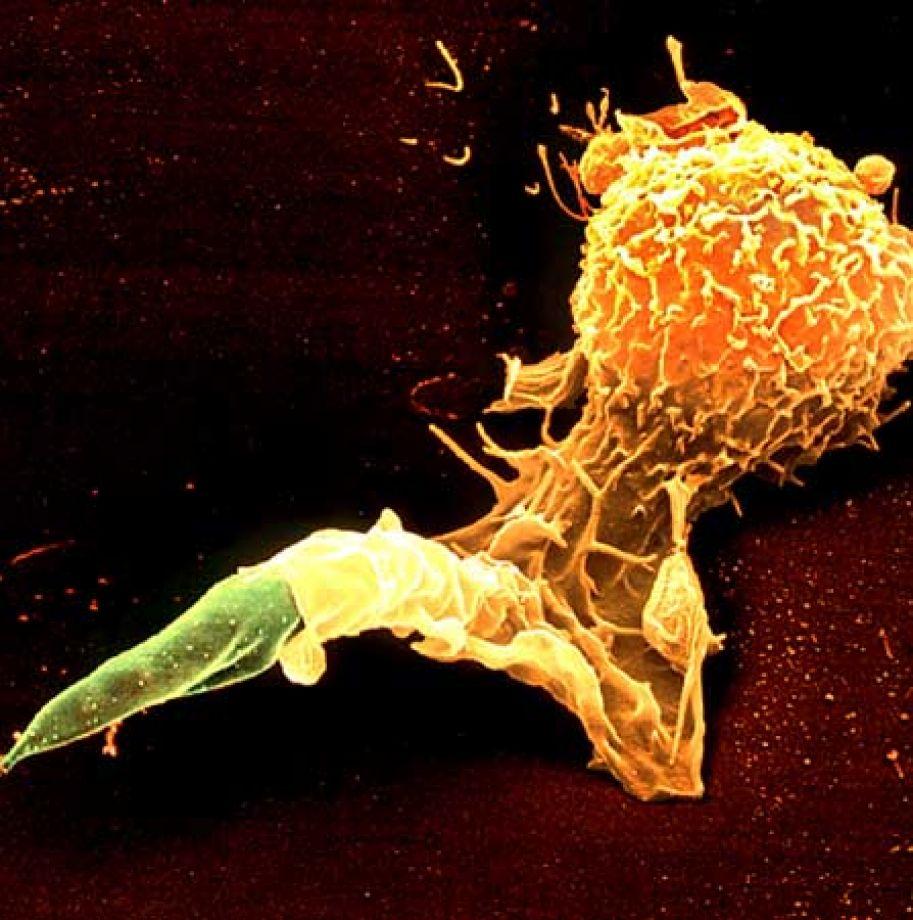 Цветной снимок, полученный с помощью сканирующего электронного микроскопа, на котором видно, как лейкоцит-макрофаг поглощает промастиготу лейшмании (фото любезно предоставлено Юргеном Бергером (Juergen Berger)).
