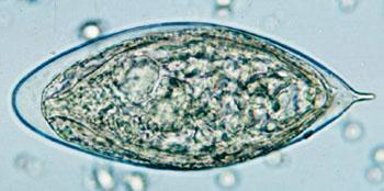 Яйцо Schistosoma haematobium в концентрате влажного препарата мочи с заметным характерным терминальным шипом (фото любезно предоставлено Центрами по контролю и профилактике заболеваний США).