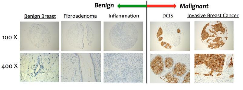 Окрашивание моноклональным антителом TAB-004 является настолько специфичным для большинства случаев карциномы молочной железы, что иммунореактивность при опухоли может быть оценена даже без микроскопа. Анализ крови, разработанный OncoTAb, может быть полезным дополнительным тестом, используемым совместно с маммографией, для женщин с плотной тканью молочных желез (фото любезно предоставлено OncoTab).