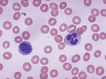 Мазок крови, демонстрирующий сегментоядерный нейтрофил и зрелый лимфоцит с единственным большим ядром (фото любезно предоставлено Медицинской школой Университета Юты).