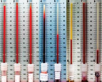 Показатель СОЭ в зависимости от различных условий (фото предоставлено Getty Images).