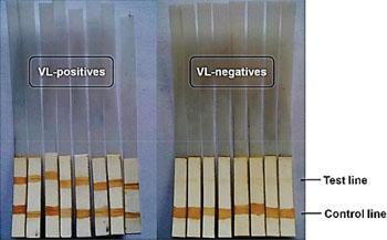 Иммунохроматографический анализ на тест-полосках показывает положительные результаты на висцеральный лейшманиоз, демонстрируя две полоски на тестовой и контрольной линиях, и отрицательные результаты, когда полоска наблюдается только на контрольной линии (фото любезно предоставлено Индийским институтом химической биологии).