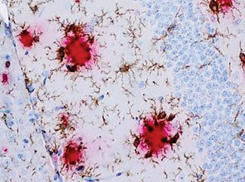 Гистология иммунных клеток мозга, микроглия (коричневый), кластер вокруг бета-амилоидных отложений (красный) в модели болезни Альцгеймера (фото любезно предоставлено Франком Хеппнером/ Charité).