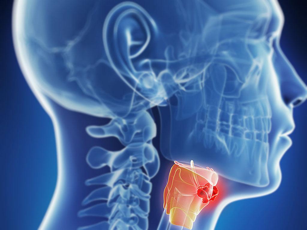 Исследование дает основание предполагать, что наблюдение за уровнями антител против белков Е6 и Е7 вируса папилломы человека может стать точным методом для прогнозирования, испытает ли пациент, лечившийся от рака ротоглотки, рецидив болезни (фото любезно предоставлено Medscape).