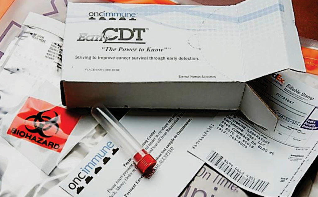 Early CDT-Lung представляет собой простой анализ крови для оценки степени риска и диагностики рака легких на ранней стадии  (фото любезно предоставлено компанией Oncimmune).