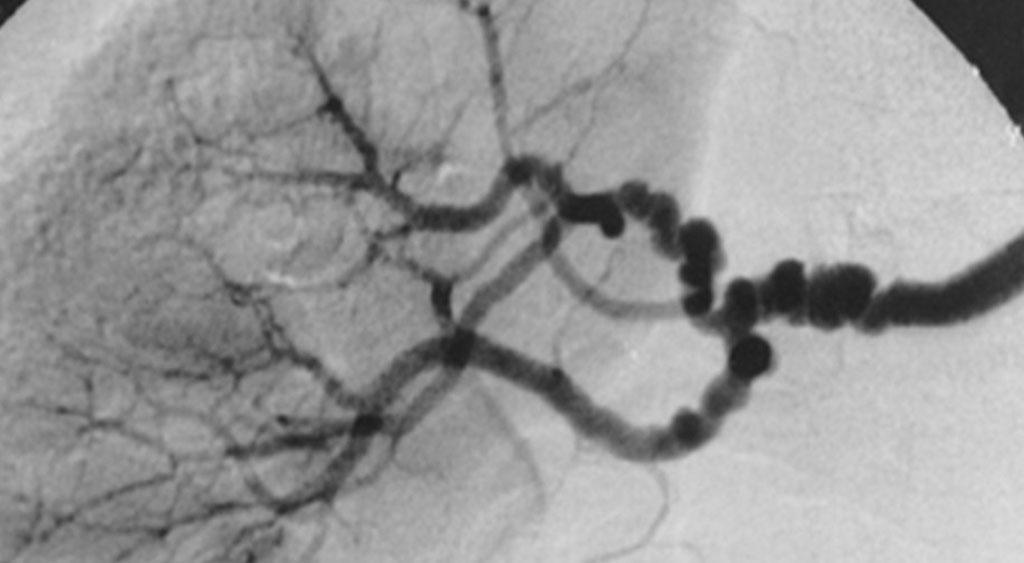 Фибромускулярная дисплазия (ФМД) почечных артерий. На изображении  показано поражение артерий в виде `бус`, характерное для мультифокальной ФМД, вызванной участками взаимосвязанного стеноза, чередующегося с небольшими аневризмами. Диаметры аневризм превышают нормальный диаметр артерии, что является знаковой характеристикой медиальной ФМД. Аналогичный вид бусин можно увидеть в перимедиальной ФМД, но диаметры бусин не превышают нормального диаметра артерии. Следует обратить внимание на участие ответвляющихся почечных артерий (фото предоставлено журналом Journal of Rare Diseases).