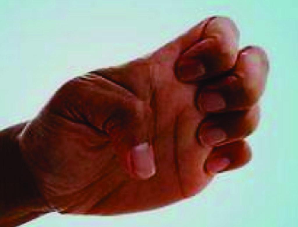 Очаговая дистония руки (фото любезно предоставил Андреа Брахфельд (Andrea Brachfeld)).