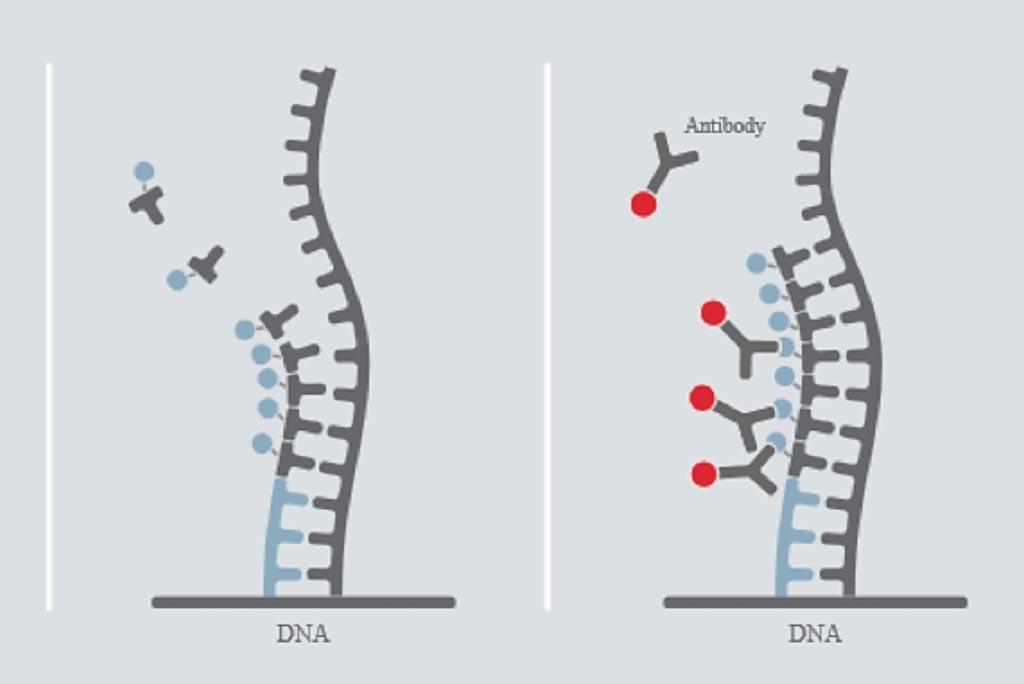 Схематическое представление анализа DiviTum: бромдезоксиуридинтрифосфат (BrdUTP) встраивается в цепь ДНК в твердой фазе. Встроенный бромдезоксиуридин (BrdU) обнаруживается с помощью моноклонального антитела к бромдезоксиуридину, конъюгированного с ферментом щелочная фосфатаза, производящим сигнал. Уровень бромдезоксиуридина, встраивавшегося в течение некоторого времени, пропорционален уровню активности тимидинкиназы в образце (фото любезно предоставлено компанией Biovica).