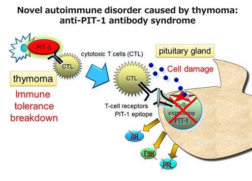 Гипофизарный фактор транскрипции PIT-1 играет важную роль в выработке соматотропного гормона, тиреостимулирующего гормона и пролактина. Исследователи определили, что тимома обнаруживалась в исследованных случаях `синдрома антител PIT-1`. Экспрессия PIT-1 была аномально повышена в тимоме, и это, вероятно, вызвало нарушение иммунной толерантности и гипопитуитаризм, который возникает у пациентов с этим аутоиммунным заболеванием (фото любезно предоставлено Университетом Кобе).