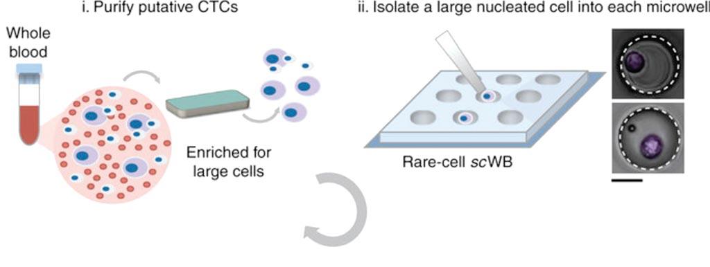 Микрожидкостный процесс обработки редких клеток для мультиплексного вестерн-блоттинга отдельных циркулирующих опухолевых клеток, взятых у пациента (изображение любезно предоставлено Калифорнийским университетом в Беркли).