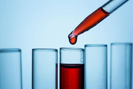 Биоинженеры из Калифорнийского университета в Сан-Диего разработали новый анализ крови, который может обнаружить рак и определить, где в организме растет опухоль (фото любезно предоставлено iStock).