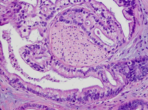 Гистопатология аденокарциномы поджелудочной железы, где аденокарцинома обертывает нерв (в центре). Фото любезно предоставлено школой медицины Джонса Хопкинса.