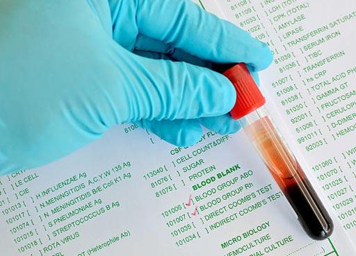 Глобальный рынок продуктов для тестирования и определения группы крови в 2016 году достиг 2,6 миллиарда долларов США (фото любезно предоставлено iStock).