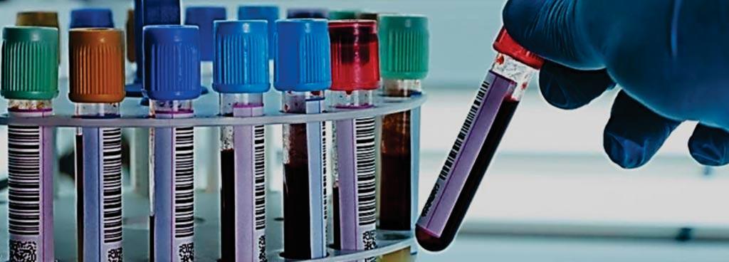 Различные пробирки с собранной кровью, используемые в клинической лаборатории (фото предоставлено Labs USA).