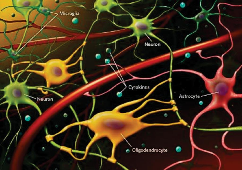 Хроническое нейровоспламенение, измеряемое высокими уровнями циркулирующих воспалительных цитокинов и активированных астроцитов и микроглий в головном мозге (фото любезно предоставлено доктором Оксаной Кайданович-Бейлин и др.).