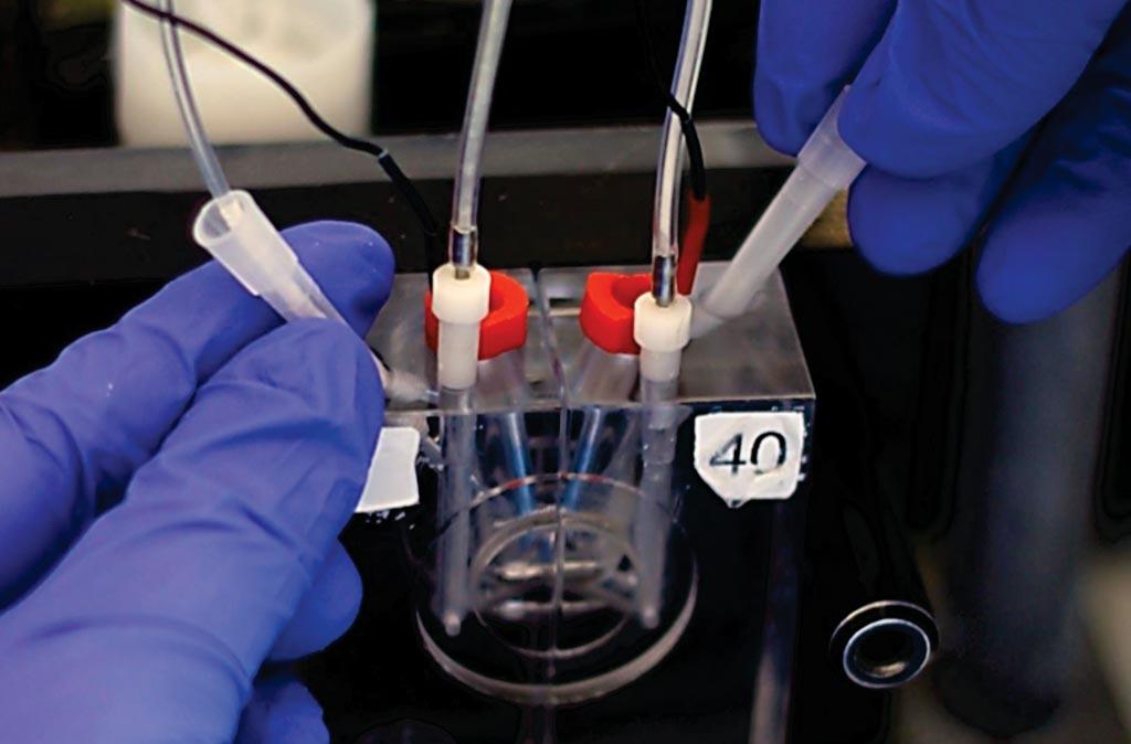 Ученые измерили распространение бактерий с помощью биопсии толстой кишки в камере Уссинга (фото любезно предоставлено Карин Сёдерлунд Лейфлер).