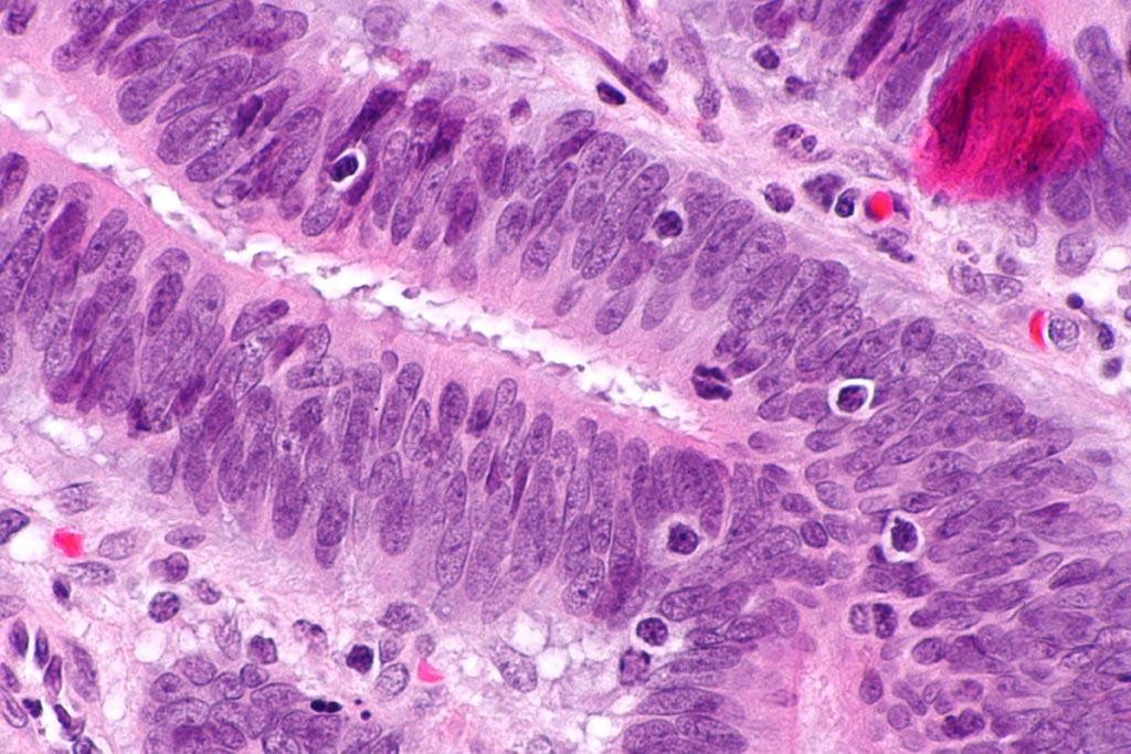 Микрофотография, показывающая инфильтрационные опухолевые лимфоциты при колоректальной карциноме. Окрашивание гематоксилином и эозином. Инфильтрационные опухолевые лимфоциты (ИОЛ) указывают на микросателлитную нестабильность (фото любезно предоставлено Wikimedia).