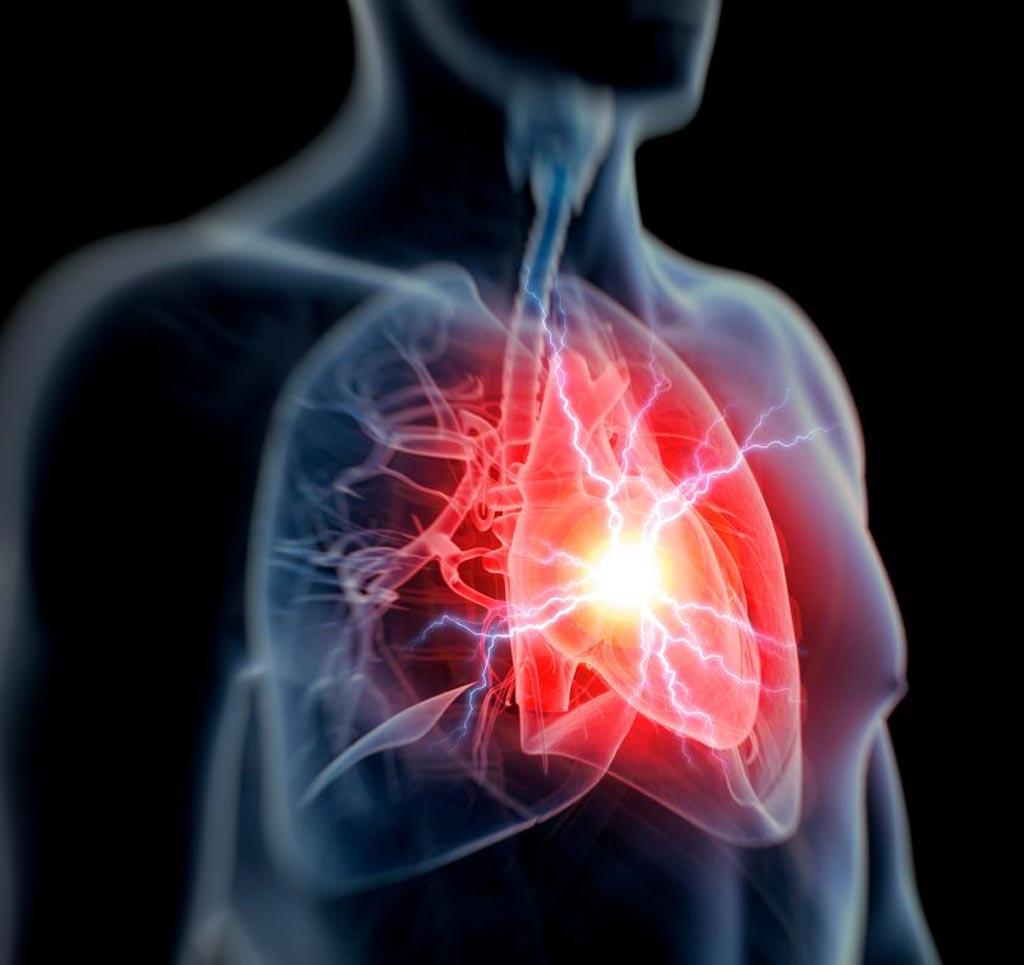 Исследования показывают, что люди с более низким содержанием кальция в крови имеют большую вероятность пережить внезапную остановку сердца, чем люди с более высоким уровнем кальция (фото любезно предоставлено SPL).