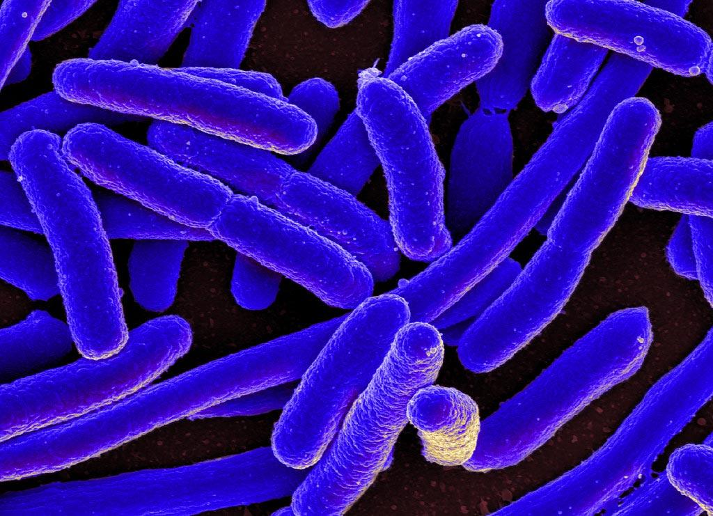 Фотография Escherichia coli, полученная с помощью сканирующего электронного микроскопа (фото любезно предоставлено iStock).