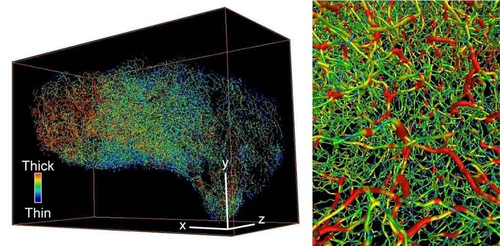Трехмерные изображения, показывающие сложную сосудистую систему при раке яичников (слева) и раке мочевого пузыря (справа). Толстые сосуды окрашены в красный цвет, тонкие сосуды окрашены в синий цвет (фото любезно предоставлено Нобуюки Танака (Nobuyuki Tanaka)/Каролинский институт).
