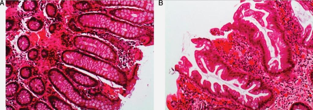 Гистологический вид зубчатых полипов: (А) нормальная слизистая оболочка толстой кишки; (B) сидячая аортальная зубчатая аденома с пилообразным видом железистых полостей в продольном разрезе (фото любезно предоставлено доктором Куатрекасасом (Cuatrecasas)).