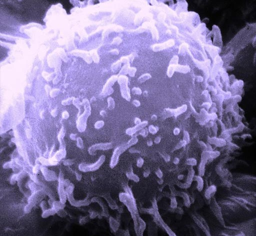 Фотография одиночного лимфоцита человека, полученная с помощью сканирующего электронного микроскопа (фото любезно предоставлено Национальным институтом рака).