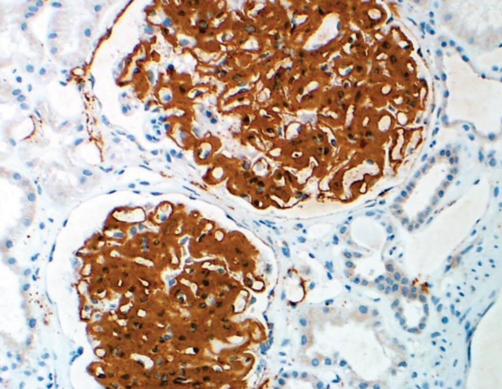 Иммуногистохимия нового биомаркера DNAJB9 существенно улучшает диагностическую чувствительность к редкому заболеванию почек, фибриллярному гломерулонефриту (фото любезно предоставлено клиникой Мэйо).