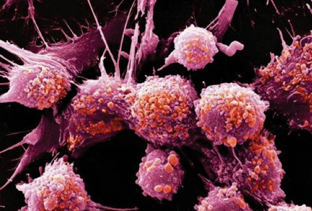 Сканирующая электронная микрофотография (SEM) клеток рака предстательной железы (фото любезно предоставлено Prostate Cancer UK).
