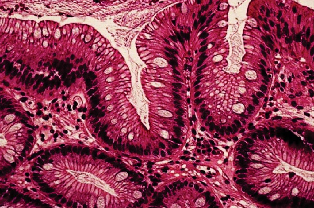 Гистопатология пищевода Барретта, характеризующаяся наличием специализированного цилиндрического эпителия с бокаловидными клетками (фото любезно предоставлено доктором Джоном Р. Голдблюмом (John R Goldblum), доктором медицины).