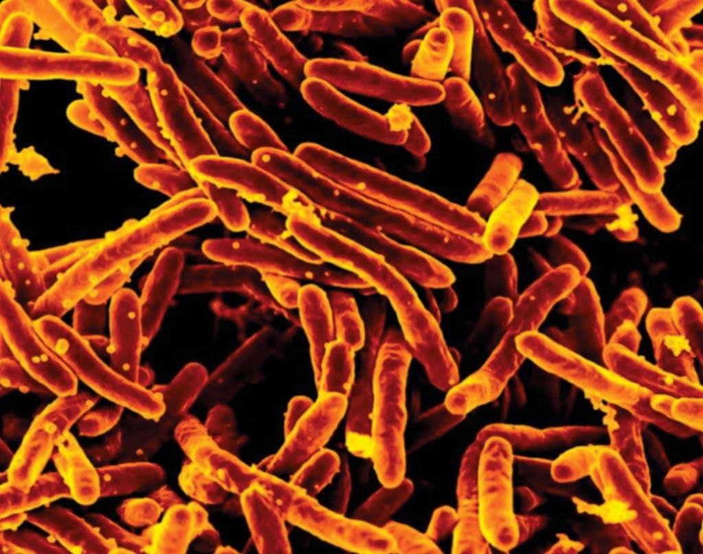 Изображение сканирующего электронного микроскопа (SEM), раскрашенное цифровым образом, демонстрирует большую группу стержнеобразных бактерий Mycobacterium tuberculosis оранжевого цвета, которые вызывают туберкулез (ТБ) у людей (фото любезно предоставлено Национальным институтом изучения аллергических и инфекционных заболеваний США).