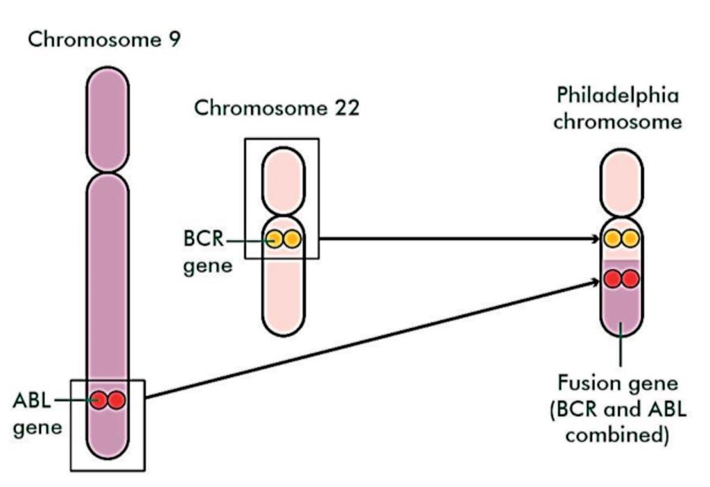 Слева на диаграмме ген ABL из хромосомы 9 и ген BCR из хромосомы 22 объединились для формирования `филадельфийской хромосомы`. Эта хромосома имеет короткую часть вверху и более длинную часть внизу. Нижняя часть маркирована как химерный ген, который представляет собой комбинацию генов BCR и ABL. Фото любезно предоставлено благотворительной организацией Macmillan Cancer Support.