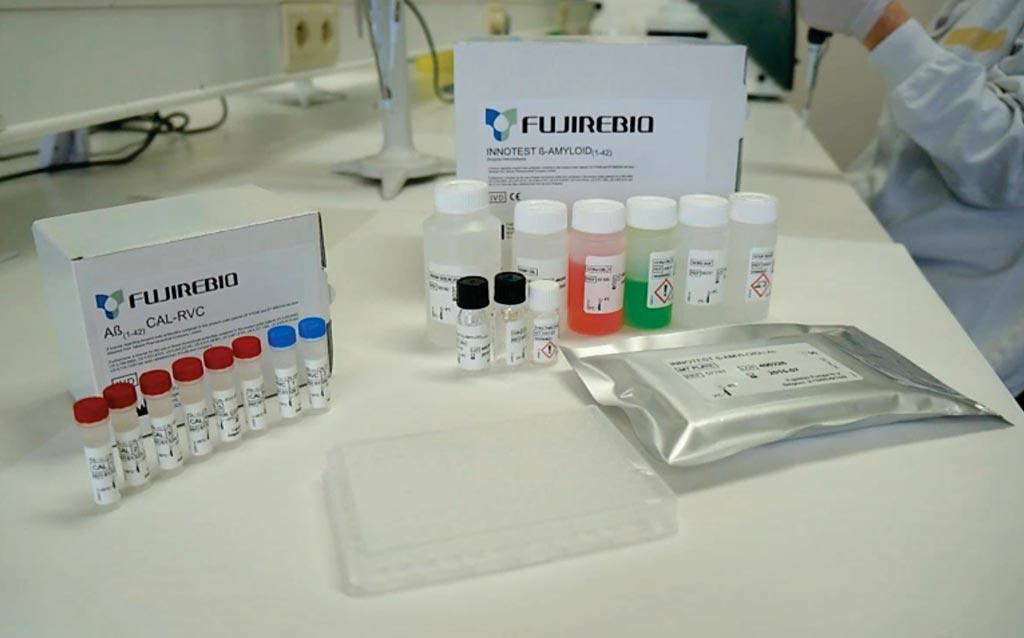 INNOTEST β-AMYLOID(1-42) представляет собой твердофазный иммуноферментный анализ для количественного определения β-амилоида (1-42) в цереброспинальной жидкости человека (ЦСЖ). Фото любезно предоставлено Fujirebio Diagnostics.