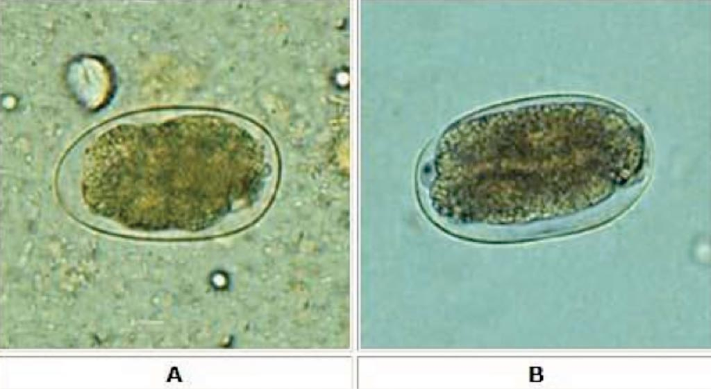 Яйца анкилостом, исследованные микроскопически на влажном препарате с использованием техники Като-Каца (яйца Ancylostoma duodenale и Necator americanus не могут быть выделены морфологически). Зародыш (B) начал клеточное деление и находится на ранней стадии (гаструла). Фото любезно предоставлено Вишну Вардхан Серла (Vishnu Vardhan Serla)/Махип Сангха (Maheep Sangha)).