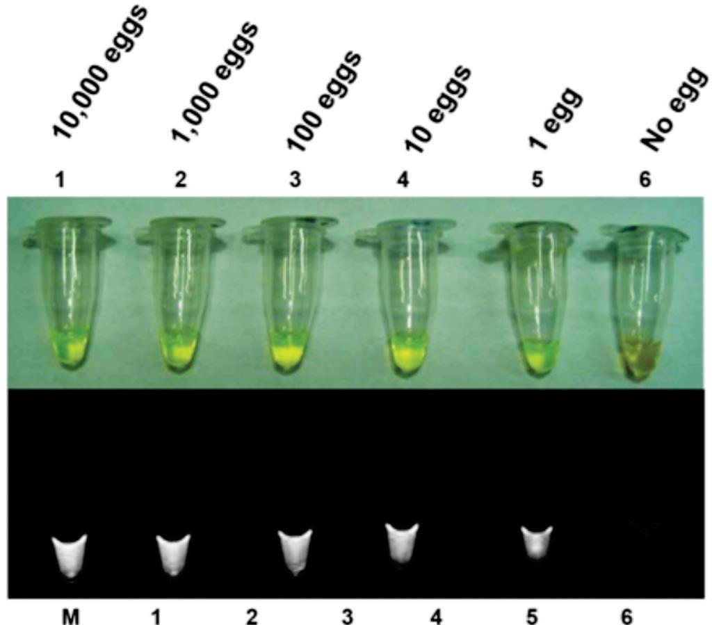 Чувствительность анализа методом петлевой изотермической амплификации (LAMP) для обнаружения яиц Clonorchis sinensis в экскрементах, экспериментально меченных с известным количеством яиц в десятикратных серийных разведениях от 10 000 яиц (ряд 1) до одного яйца (ряд 5). Фото любезно предоставлено Медицинским исследовательским центром Сеульского национального университета.