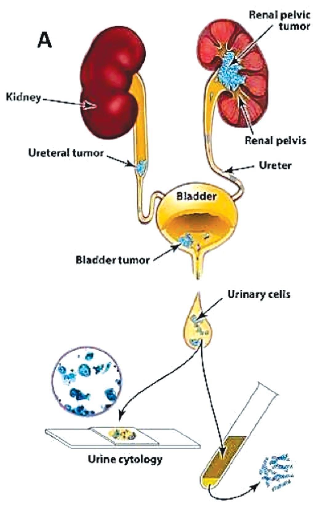 Диаграмма подхода, используемого для оценки клеток в моче; анализ UroSEEK предназначен для обнаружения уротелиальных новообразований, которые находятся в непосредственном контакте с мочой (фото любезно предоставлено Johns Hopkins Medicine).