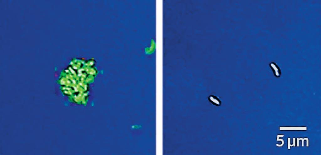 Новая методика, которая побуждает бактерии туберкулеза светиться, обнаруживает живые клетки Mycobacterium tuberculosis, на которые не было оказано воздействия лекарственным препаратом (слева), но не те, которые подвергались лечению (справа). Фото любезно предоставлено Стэнфордским университетом.
