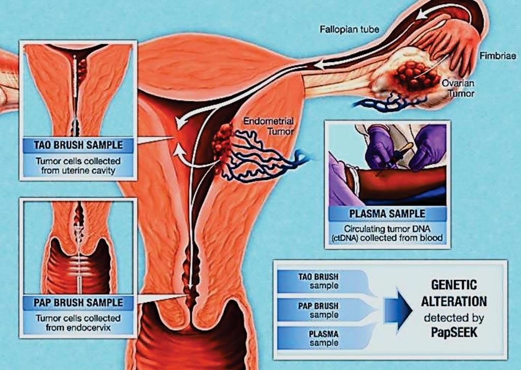 Поскольку жидкие выделения, исследуемые в тесте Папаниколау, иногда содержат клетки эндометрия или яичников, ученые обнаружили, что при использовании разных щеточек они могут выявлять присутствующие в выделениях раковые клетки из этих органов (фото предоставлено Университетом Джонса Хопкинса).