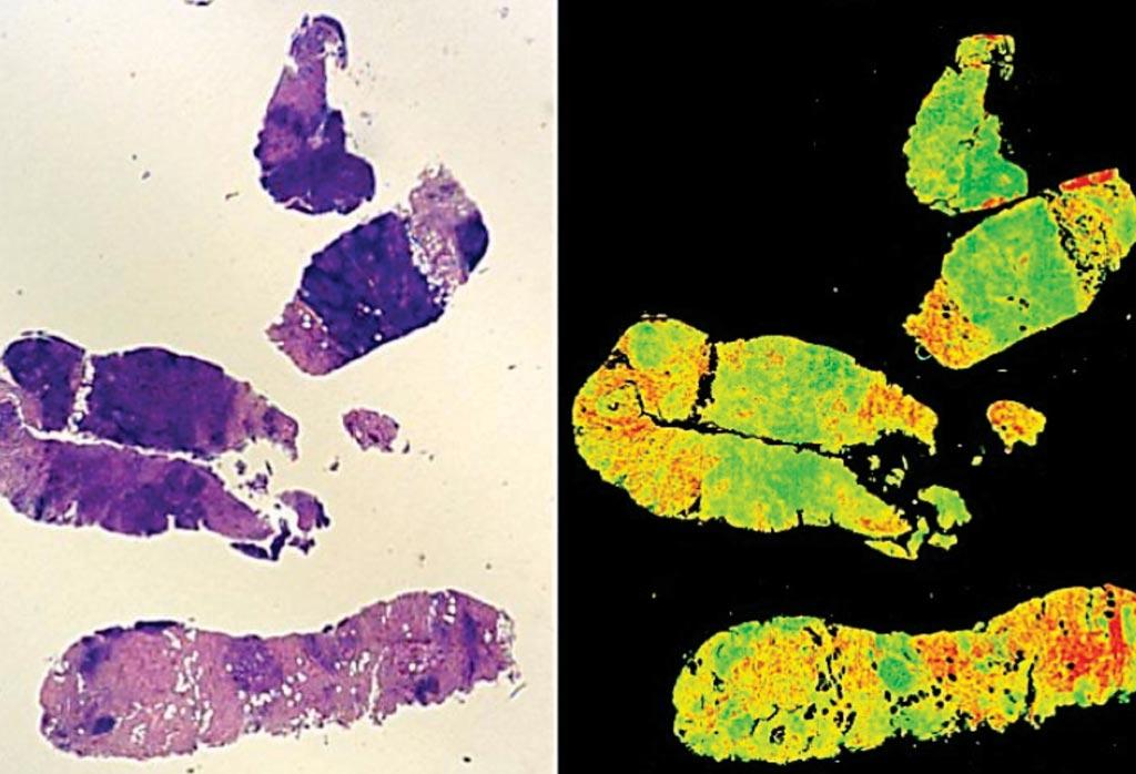 Для оценки раковых опухолей может использоваться новая передовая технология, позволяющая устранить человеческую субъективность. Традиционная окрашенная H+E биопсия (слева) и изображение, полученное с помощью технологии Digistain (справа). Фото любезно предоставлено Imperial College London.