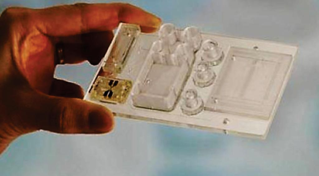 Маленький пластиковый чип размером с кредитную карту может предоставить такую же диагностическую информацию, что и биопсия костного мозга, однако использует вместо этого образец крови (фото любезно предоставлено Канзасским университетом).