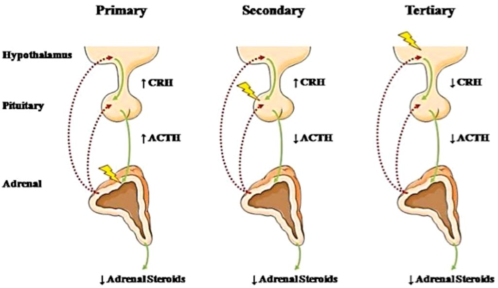 Диаграмма типов надпочечниковой недостаточности. CRH: кортикотропин-рилизинг-гормон, ACTH: адренокортикотропный гормон (фото предоставлено Национальным институтом здравоохранения США).