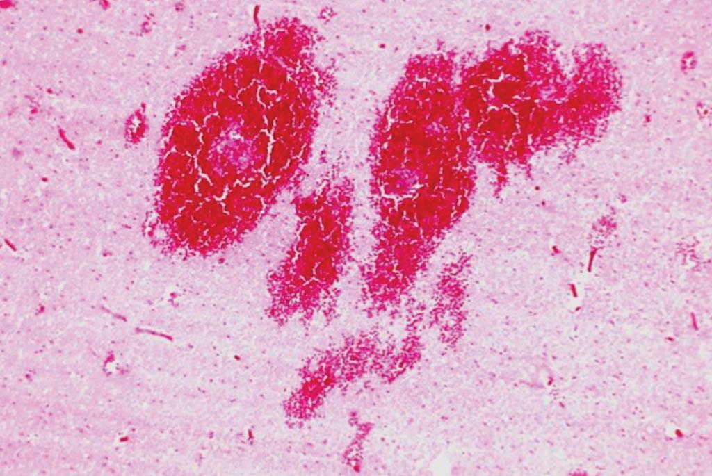 Гистология головного мозга, показывающая инфаркт и кровоизлияние из-за разорванной мешковидной аневризмы и тромбоза правой средней мозговой артерии (фото любезно предоставлено Питером Андерсоном (Peter Anderson)).