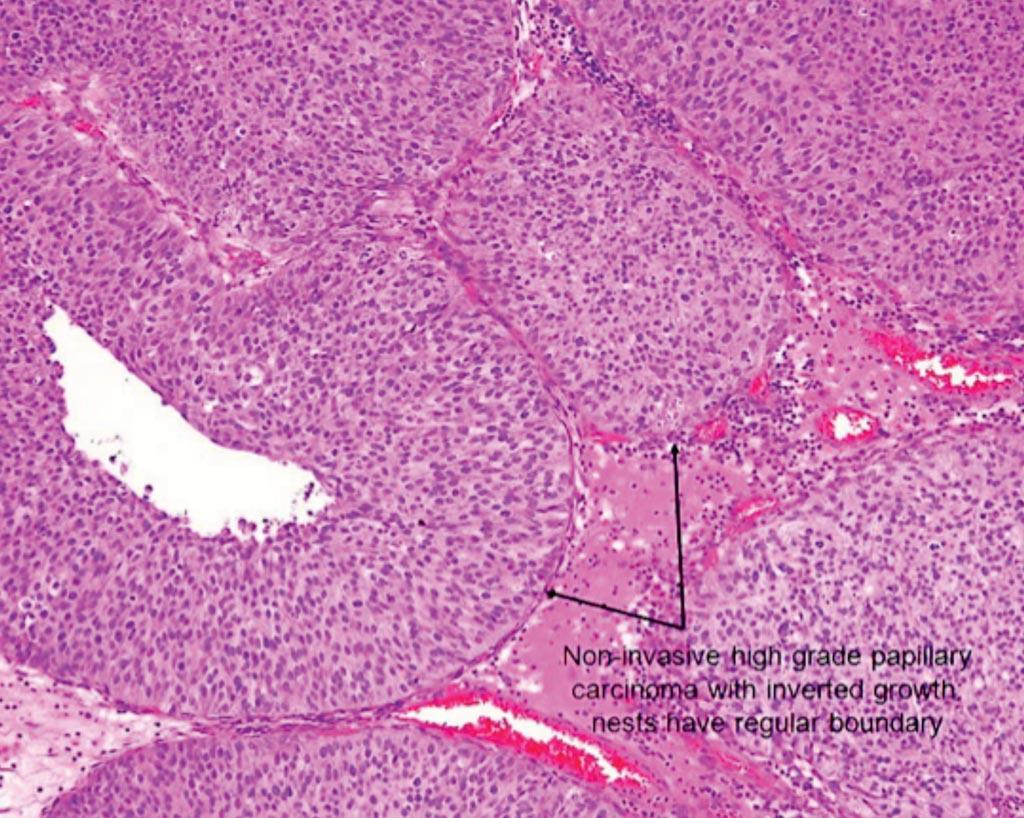 Гистопатология папиллярного мышечно-неинвазивного рака мочевого пузыря (фото любезно предоставлено Американской урологической ассоциацией (American Urological Association)).