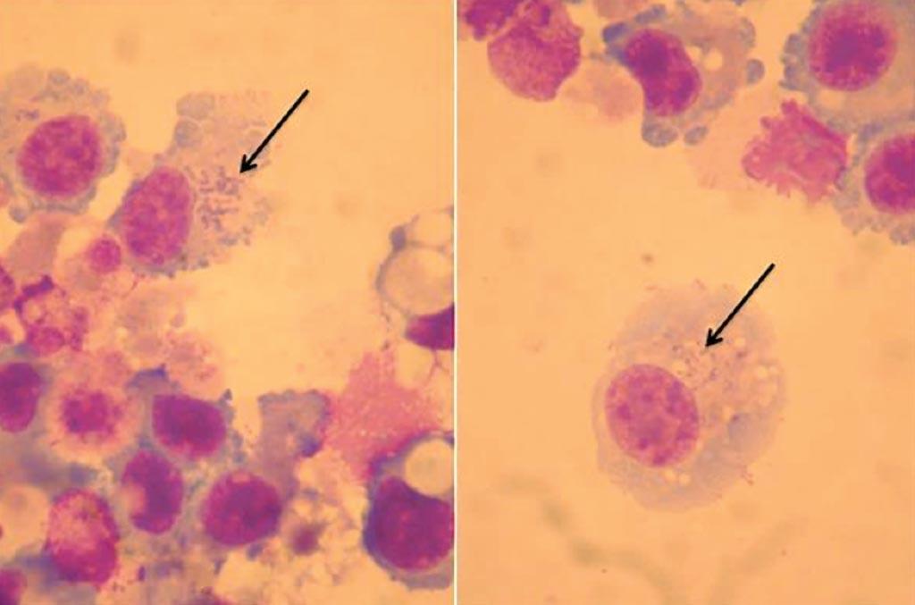 Orientia tsutsugamushi (стрелки) в культуре жидкости бронхоальвеолярного лаважа у пациента с острым респираторным дистресс-синдромом (фото любезно предоставлено Университетом Экс-Марсель).