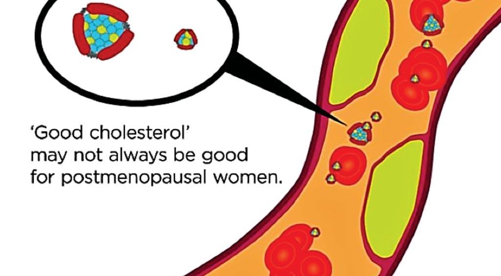 Постменопаузальные факторы могут влиять на защищающие сердце свойства липопротеинов высокой плотности (ЛПВП), также известных как `хороший холестерин` (фото любезно предоставлено Медицинским центром Питтсбургского университета).