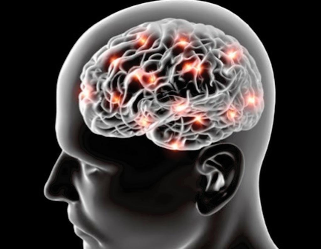 Новое исследование показывает, что ожирение, которое влияет на печень, может сыграть определенную роль в развитии болезни Альцгеймера и деменции в отдаленном будущем (фото предоставлено Deposit Photos).