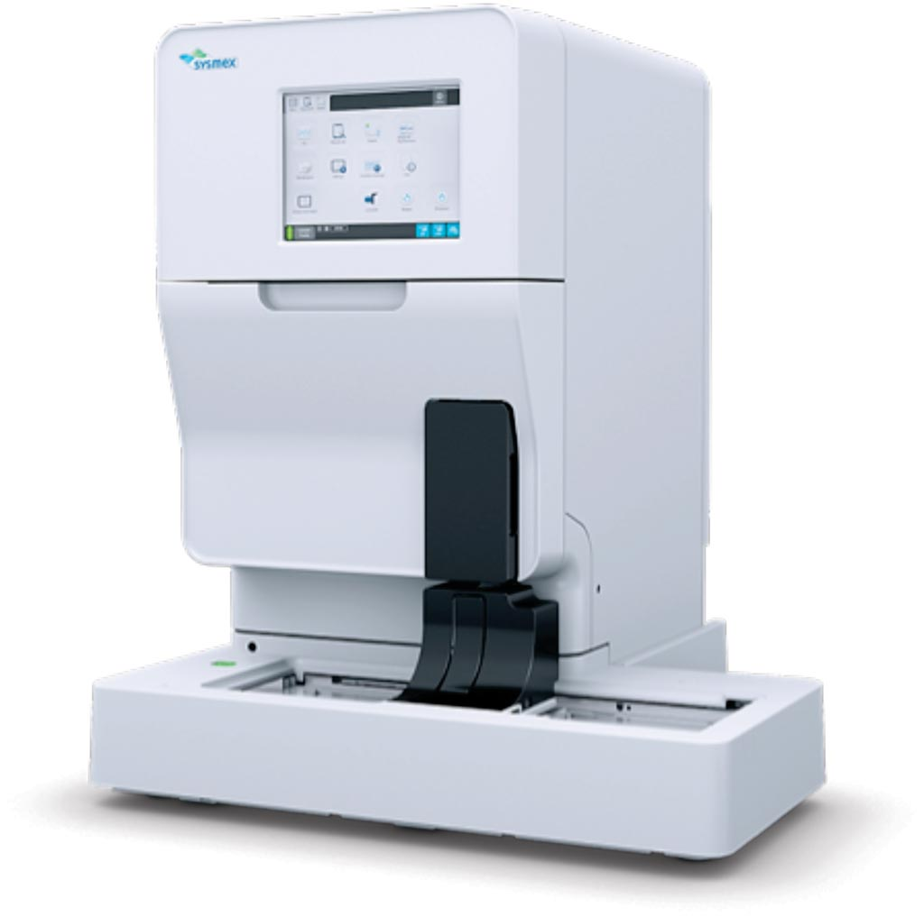 Флуоресцентный проточный цитометр-анализатор мочи UF-5000 (фото любезно предоставлено Sysmex).