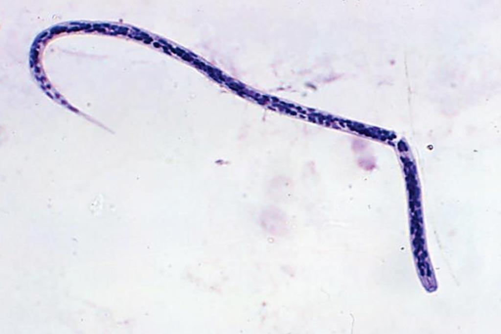 Микрофотография личинки Onchocerca volvulus microfilaria, причины онхоцеркоза  - речной слепоты (фото любезно предоставлено доктором Ли Муром (Dr. Lee Moore)/Центр по контролю и профилактике заболеваний).