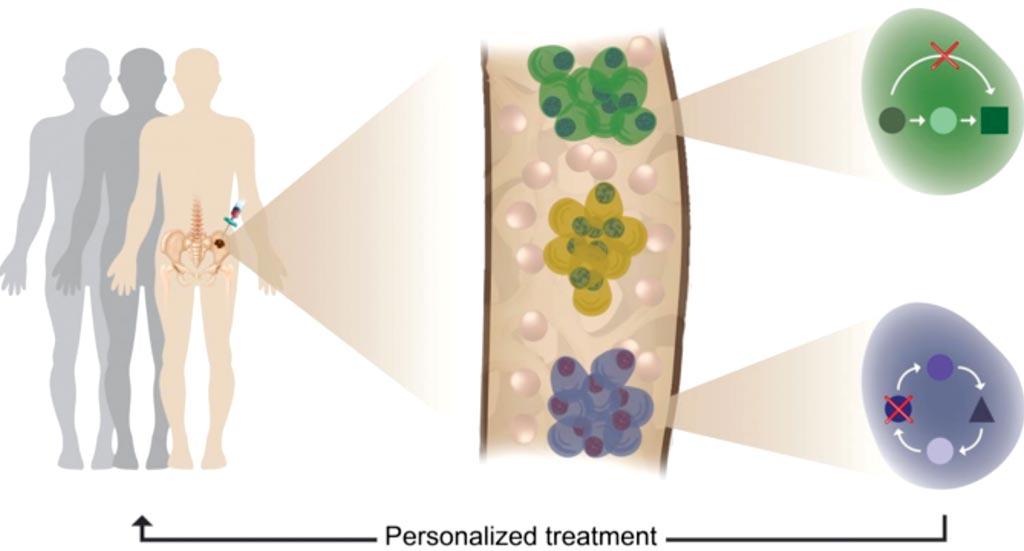 Гетерогенность опухоли, клональная эволюция и резистентность к терапии были выявлены с помощью профилирования отдельных клеток пациентов с множественной миеломой (фото любезно предоставлено Weizmann Institute of Science).