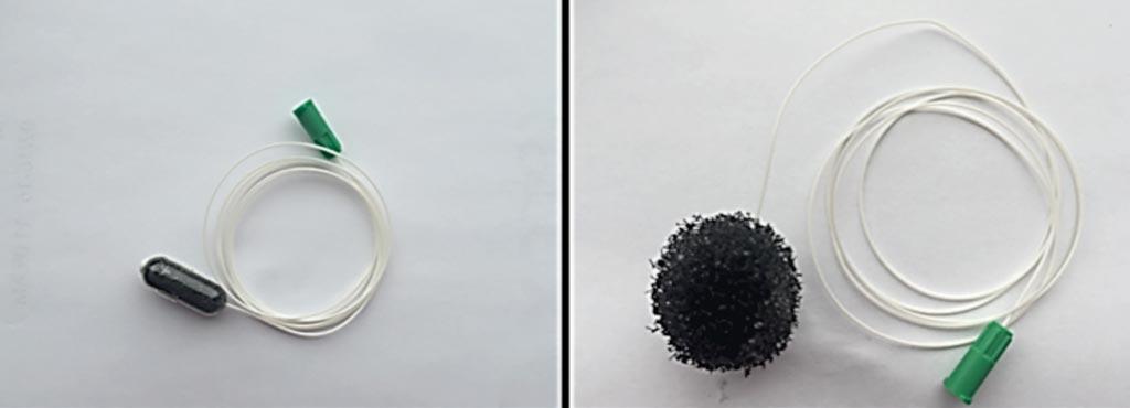 EsophaCap упакован в желатиновую капсулу, которая растворяется в желудке пациента, высвобождая губку, деликатно собирающую клетки со всей поверхности пищевода при ее извлечении. Клеточный материал исследуется с использованием цитологических, иммуногистохимических и геномных методов (фото любезно предоставлено Swallow the Sponge).